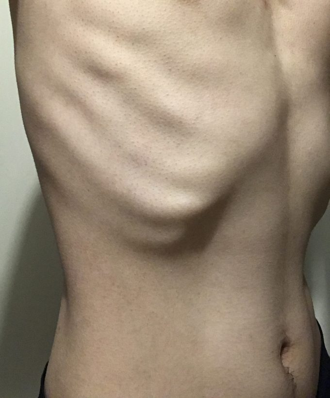 2ヶ月で20kg痩せて人生変える