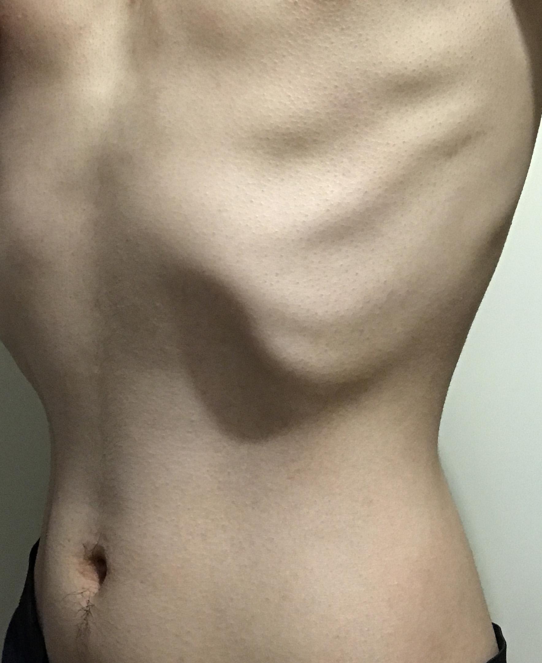 2ヶ月で20kg痩せた