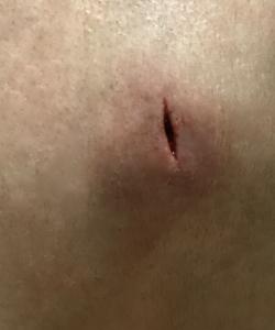 麻酔をしているにもかかわらず、悪化したニキビを切開すると激痛が走る
