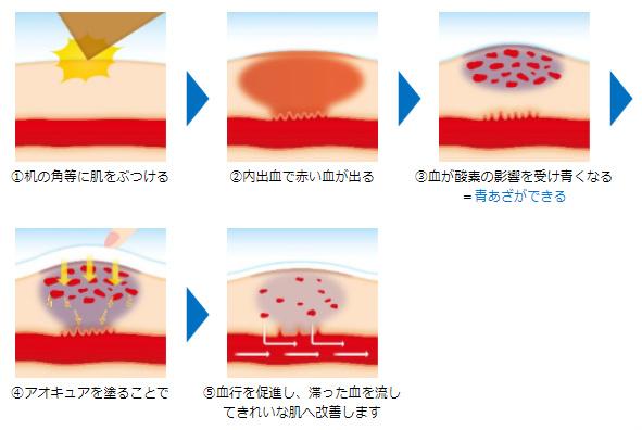 青あざが出来るメカニズム/処方のメカニズム ①机の角等に肌をぶつける▶②内出血で赤い血が出る▶③血が酸素の影響を受け青くなる=青あざができる▶④アオキュアを塗ることで▶⑤血行を促進し、滞った血を流してきれいな肌へ改善します