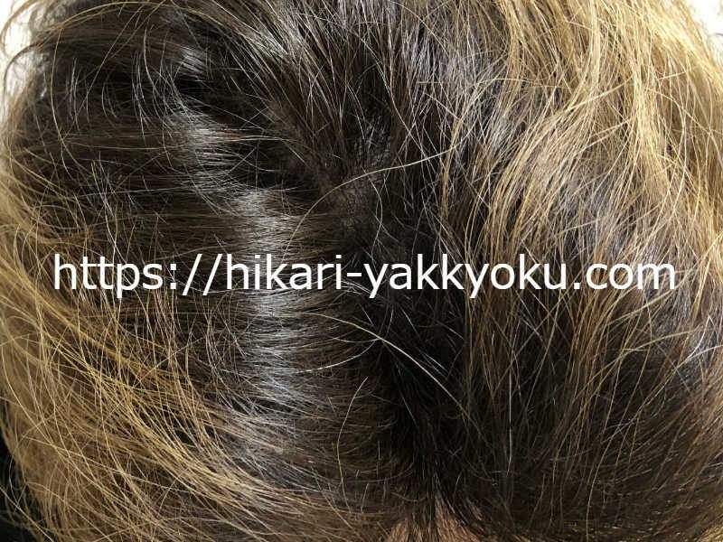 髪の分け目